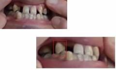 歯がががが~!