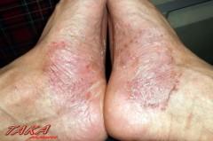 掌蹠膿疱症